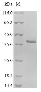SDS-PAGE- Recombinant protein Escherichia ompC