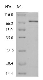 SDS-PAGE- Recombinant protein Escherichia htpG