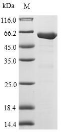 SDS-PAGE- Recombinant protein Escherichia fabB