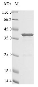 SDS-PAGE- Recombinant protein Escherichia cea