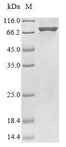 SDS-PAGE- Recombinant protein Escherichia uvrD