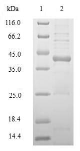 SDS-PAGE- Recombinant protein Human HLA-DRB1