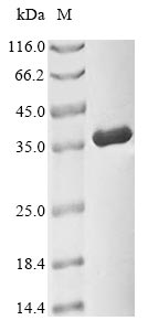 SDS-PAGE- Recombinant protein Human CDK1