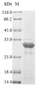 SDS-PAGE- Recombinant protein Escherichia fimH