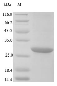SDS-PAGE- Recombinant protein Klebsiella blaNDM-1