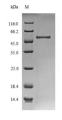 SDS-PAGE- Recombinant protein Schizosaccharomyces agn1