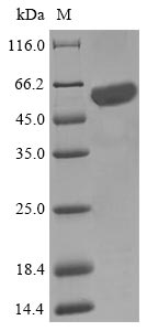 SDS-PAGE- Recombinant protein Escherichia iscS