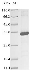 SDS-PAGE- Recombinant protein Human KIR2DS3