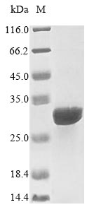 SDS-PAGE- Recombinant protein Human IL15RA