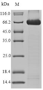 SDS-PAGE- Recombinant protein Human ALCAM