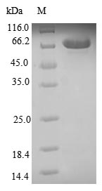 SDS-PAGE- Recombinant protein Human CA9