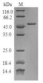 SDS-PAGE- Recombinant protein Human TPD52L1