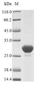 SDS-PAGE- Recombinant protein Escherichia clpP