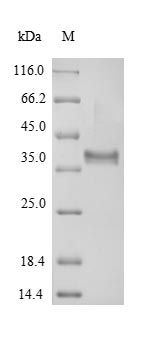 SDS-PAGE- Recombinant protein Arabidopsis P1