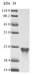 SDS-PAGE- Recombinant protein Cyanophora dnaK-A