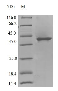 SDS-PAGE- Recombinant protein Colwellia dinB