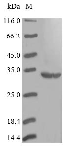 SDS-PAGE- Recombinant protein Staphylococcus folP