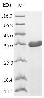 SDS-PAGE- Recombinant protein Streptococcus rplL