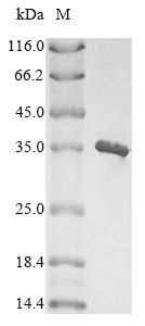 SDS-PAGE- Recombinant protein Staphylococcus icaB