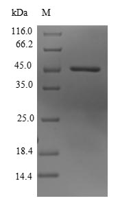 SDS-PAGE- Recombinant protein Human KDM3B