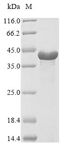 SDS-PAGE- Recombinant protein Staphylococcus isdA