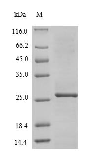 SDS-PAGE- Recombinant protein Zaire L
