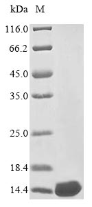 SDS-PAGE- Recombinant protein Vesicular P