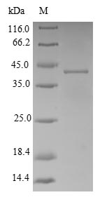 SDS-PAGE- Recombinant protein Shigella adk