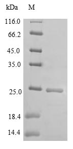 SDS-PAGE- Recombinant protein Mouse Dock8