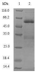 SDS-PAGE- Recombinant protein Human SIAH1