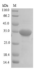 SDS-PAGE- Recombinant protein Human RGMA