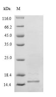 SDS-PAGE- Recombinant protein Human SELM