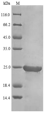 SDS-PAGE- Recombinant protein Chicken IFNB