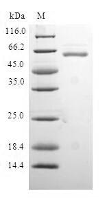 SDS-PAGE- Recombinant protein Human QKI