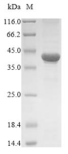 SDS-PAGE- Recombinant protein Human TXNDC5