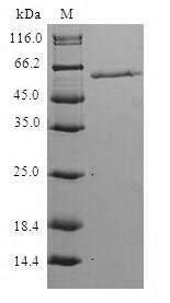 SDS-PAGE- Recombinant protein Human HPS1