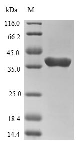 SDS-PAGE- Recombinant protein Human TSG101