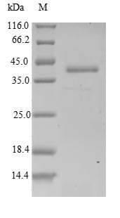 SDS-PAGE- Recombinant protein Human ARPC5L