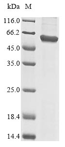 SDS-PAGE- Recombinant protein Human TRAIP