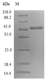 SDS-PAGE- Recombinant protein Human SAR1A