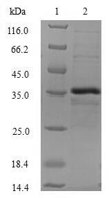 SDS-PAGE- Recombinant protein Human CTNNBIP1
