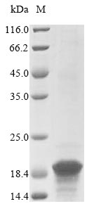 SDS-PAGE- Recombinant protein Trypanosoma KMP-11