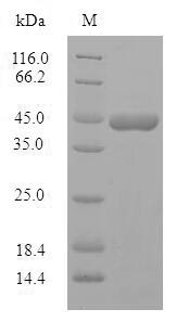 SDS-PAGE- Recombinant protein Human PPP1R1B
