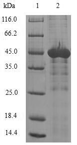 SDS-PAGE- Recombinant protein Human NAA50