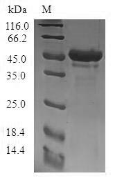 SDS-PAGE- Recombinant protein Human STMN4