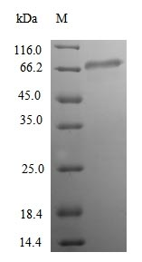 SDS-PAGE- Recombinant protein Human ACSS1