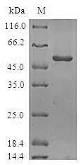 SDS-PAGE- Recombinant protein Human ORC6