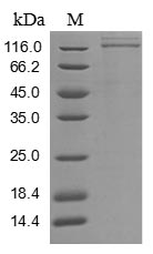 SDS-PAGE- Recombinant protein Human FLT1