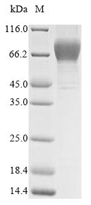 SDS-PAGE- Recombinant protein Human GUCY2C
