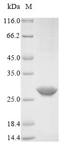 SDS-PAGE- Recombinant protein Human RCVRN